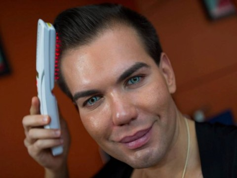 World famous human Ken doll splurges another £5k on UK's first stem cell hair transplant