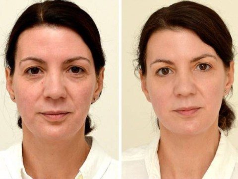 Can drinking water transform your looks?