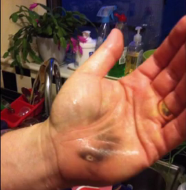 Jonathan Wells suffered painful burns after his Russell Hobbs kettle exploded (Picture: Watchdog/BBC)