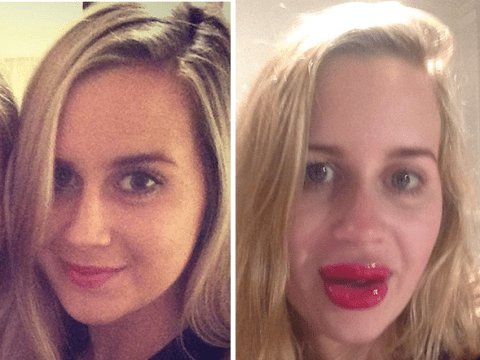 This girl's effort to get 'Kylie Jenner lips' didn't really go to plan…