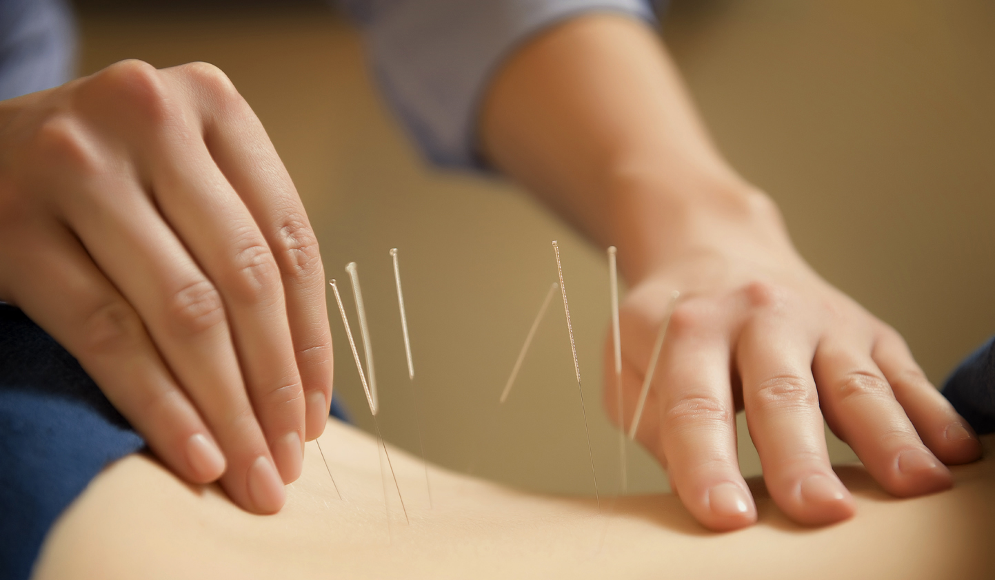 Acupuncture isn't useless after all (Picture: Getty)