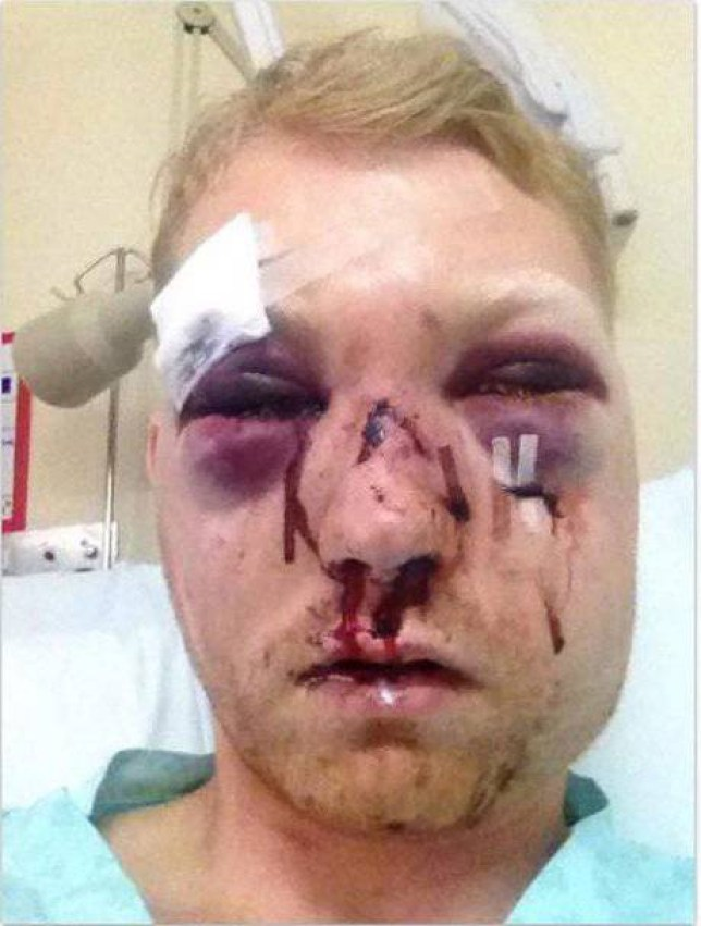 A FOOTBALLER suffered a fractured skull, nose and both eye sockets after he smashed into a fence post at the side of the pitch...David Gibson, 28, sustained the horrific injuries after he landed face-first on the barrier when he was tackled in the non-league cup clash in Suffolk...The talented striker was playing for Felixstowe Harpers against Ipswich Valley Rangers in the Bob Coleman Cup quarter final when the freak accident happened on Saturday (Mar 14)...Horrific - David as he recovered in hospital.