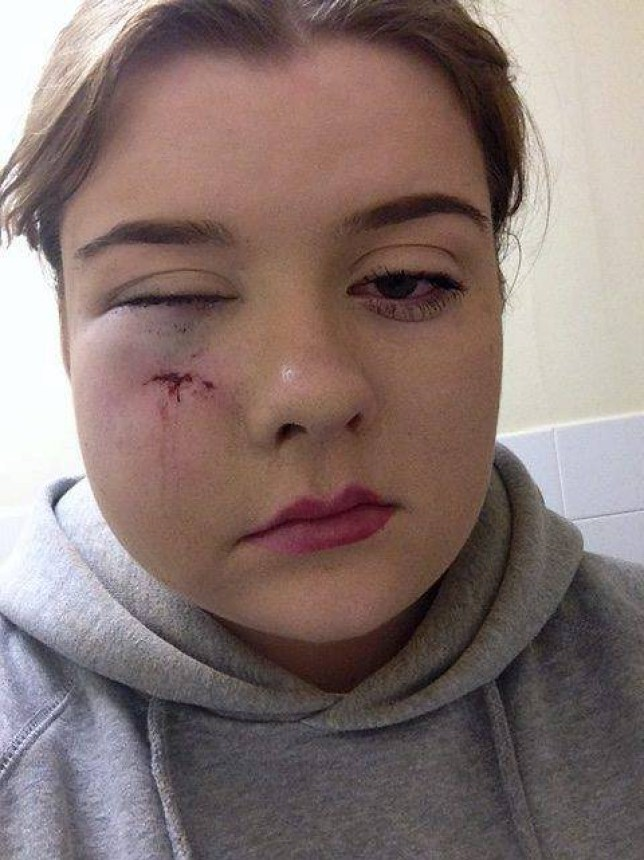 "These horrific injuries show the battered faced of a nursing student who was glassed by a thug who threw a pint glass across a dancefloor like it was a cricket ball. Pretty Charnelle Hughes, 20, who has been left scarred by the attack initially believed she had been punched after the glass hit her in the face and knocked her to the ground as she stood at a bar texting. Preston Crown Court heard how Jordan Goode, 20, hurled the glass into the crowded yet small room at the Adelphi Pub in Preston, Lancashire, during a gig in December last year. The court was told that Goode who has no previous convictions had been ""hard-core dancing"" at the venue when he picked up a pint glass from the floor. Goode of Tipton, West Midlands, was said to have put the glass onto a table before picking it back up and throwing it around 12 ft towards the bar where Charnelle had been stood. The impact knocked the student backwards and she suffered concussion before being taken to the Royal Preston Hospital where she feared she could lose her eye. Goode pleaded guilty to section 20 wounding and was handed a suspended sentence of 14 months."