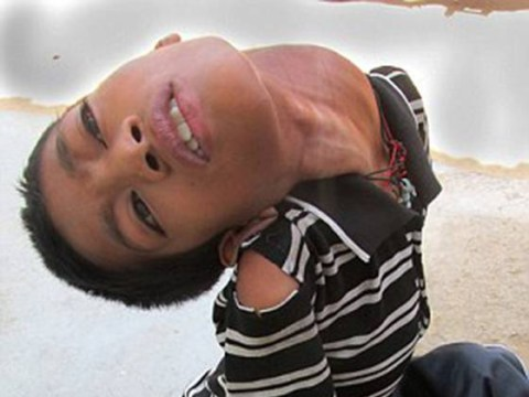 Young boy's head hangs upside down due to rare condition
