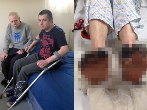 Man loses toes to frostbite after bedroom tax forced him to live in a tent