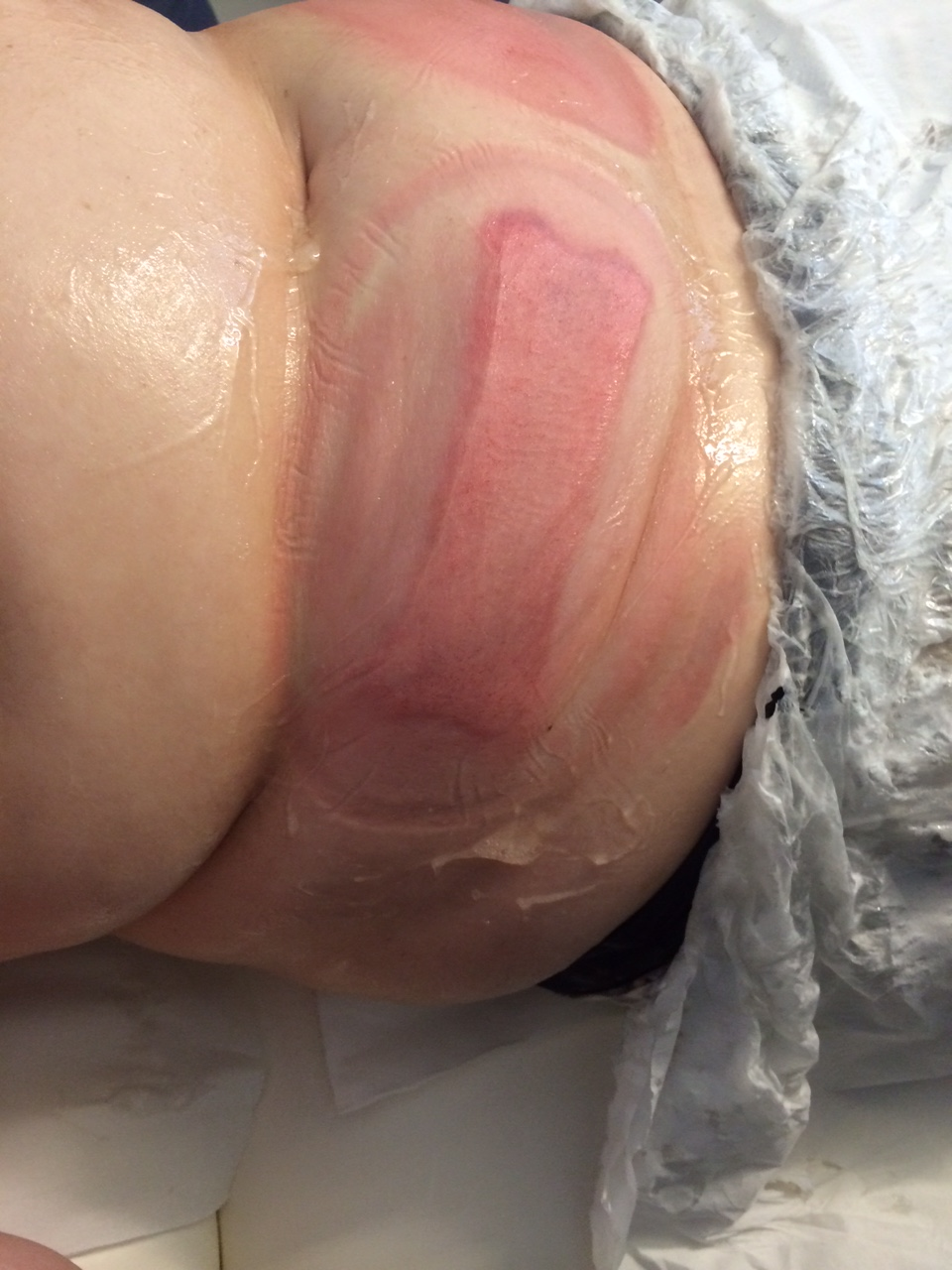 After the CoolTech treatment the fat raises to the surface, which looked like packs of butter before its massaged down