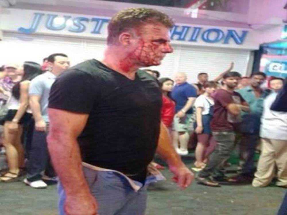 """Pic shows: Michael Merry - victim.nnAn Irish tourist was given a savage beating by a lady boy in Thailand after he told her to get lost when she suggested they have some fun together.nnAccording to eyewitnesses the Irishman, named as 55-year-old Michael Merry, had been approached by the lady boy transvestite at 3am while he was walking down the street in Thailand¿s holiday resort of Pattaya.nnThe area is a coastal resort town east of Bangkok that is infamous for its seedy night life scene and high crime rate.nnLocal police spokesman Piyapong Ensan said that the attacker had been identified as transgender person Wichai Sripalang, 24, who had had suggested that the Irishman might like to have some fun with her.nnThe police spokesman said: """"The transgender woman who approached him and offered sexual services, he declined the offer but she then put her arms around him and molested him. This annoyed him and he shoved her away, causing her to fall to the ground. When she stood up she took of one of her shoes, and used it to hit the victim over the head.""""nnAccording to medics the high-heeled shoe had left a deep wound in the tourists head, and she has been charged with physical assault. She was still at the scene when officers arrived.nnThe Irishman was treated at the scene, and the lady boy who was questioned over the incident faces a fine.nnIn a similar incident, a transgender prostitute was arrested for allegedly attacking a Polish woman with a high-heel shoe. According to police, the suspect was arguing with the victim after she attempted to offer sexual service to the victim's husband.nn(ends)nn"""