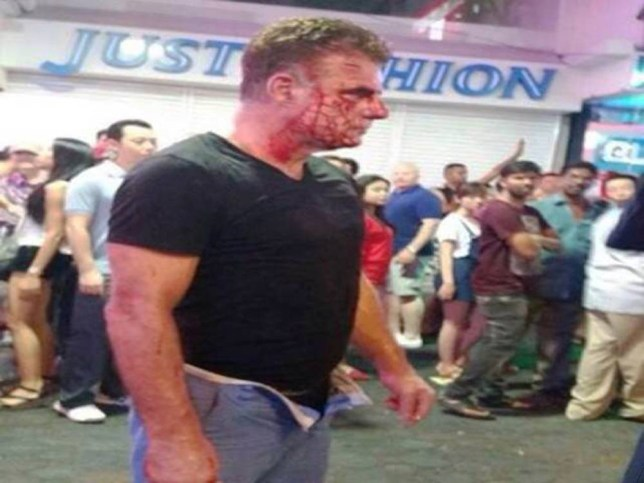 "Pic shows: Michael Merry - victim.nnAn Irish tourist was given a savage beating by a lady boy in Thailand after he told her to get lost when she suggested they have some fun together.nnAccording to eyewitnesses the Irishman, named as 55-year-old Michael Merry, had been approached by the lady boy transvestite at 3am while he was walking down the street in Thailand¿s holiday resort of Pattaya.nnThe area is a coastal resort town east of Bangkok that is infamous for its seedy night life scene and high crime rate.nnLocal police spokesman Piyapong Ensan said that the attacker had been identified as transgender person Wichai Sripalang, 24, who had had suggested that the Irishman might like to have some fun with her.nnThe police spokesman said: ""The transgender woman who approached him and offered sexual services, he declined the offer but she then put her arms around him and molested him. This annoyed him and he shoved her away, causing her to fall to the ground. When she stood up she took of one of her shoes, and used it to hit the victim over the head.""nnAccording to medics the high-heeled shoe had left a deep wound in the tourists head, and she has been charged with physical assault. She was still at the scene when officers arrived.nnThe Irishman was treated at the scene, and the lady boy who was questioned over the incident faces a fine.nnIn a similar incident, a transgender prostitute was arrested for allegedly attacking a Polish woman with a high-heel shoe. According to police, the suspect was arguing with the victim after she attempted to offer sexual service to the victim's husband.nn(ends)nn"