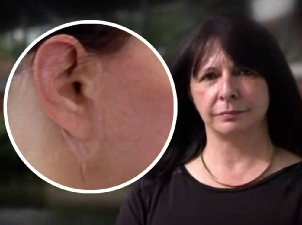 EXCLUSIVE: Surgeon sewed woman's ears to her FACE in bungled face lift