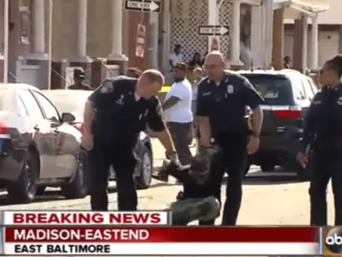 Handcuffed man suddenly suffers mysterious injury when he sees news camera