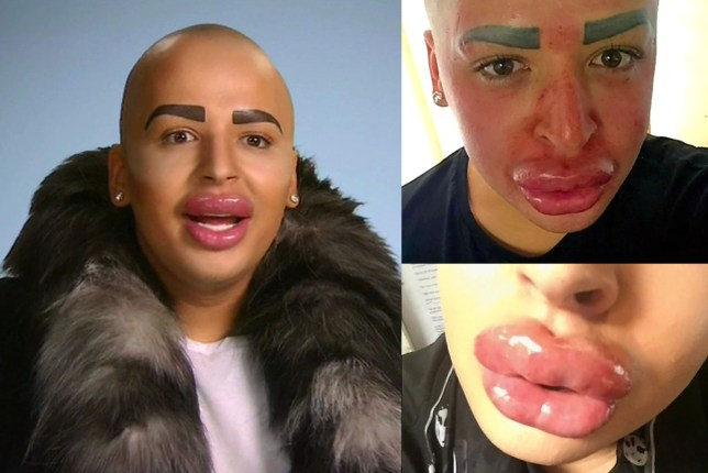 ae40627e4c0 Kim Kardashian superfan who spent £100,000 on surgery has leaking lips and  can no longer move his face