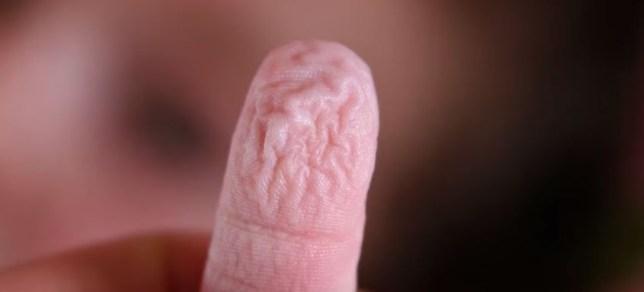 wrinkly finger