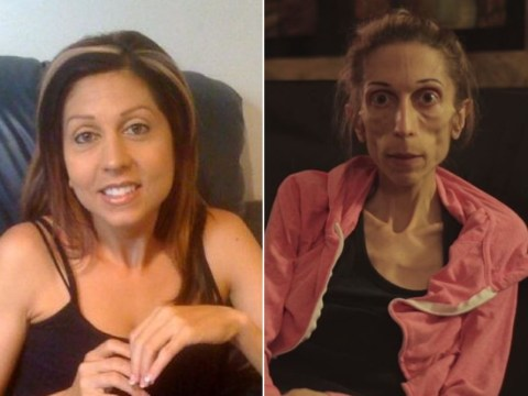 Anorexic woman who weighs just 40lbs raises over $150k for treatment after desperate plea for help