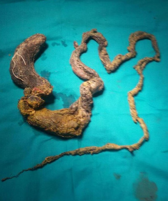 STORY FROM INDIA - FIVE FOOT LONG HAIR BALL FOUND INSIDE THE STOMACH OF A 15 YEAR OLD GIRL