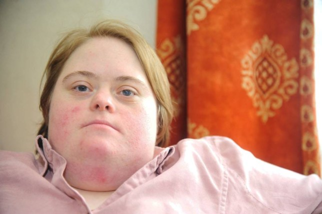 """Stephanie Couldry who has down's syndrome. Stephanie was thrown out of Morrisons because of her condition and was accused of she was going to steal. See SWNS story SWDOWNS: A woman suffering from Down's syndrome was left humiliated when she was thrown out of Morrisons while shopping for her disabled parents - because she might steal. Stephanie Couldry, 30, regularly shops in the store on her mobility scooter when she visits her parents and is well-known to staff. But when she visited the Haydon Wick store in Swindon, Wilts., alone on July 4, a member of staff told her to """"get out before she caused any mischief"""". Stephanie, who lives independently in Swindon, said: """"I was in there going shopping for my mum and dad."""