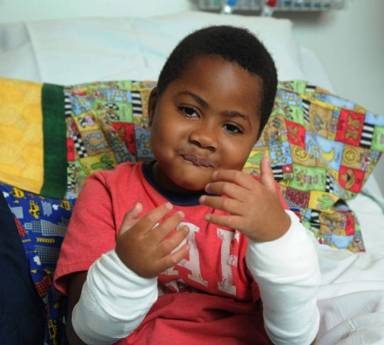 Zion Harvey, 8, of Baltimore, shows off his new hands after transplant surgery at Children's Hospital of Philadelphia on July 27, 2015. Zion lost his hands and feet to a bacterial disease when he was 2, but had a double hand transplant in Philadelphia in early July 2015, the first pediatric double hand transplant. (Clem Murray/Philadelphia Inquirer/TNS) Photo via Newscom