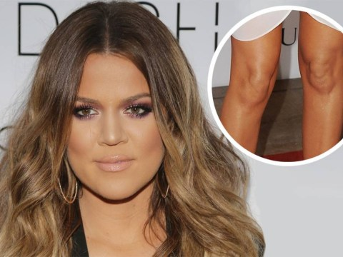 Khloe Kardashian reveals 'major' surgery after being trolled for 'funny' knees