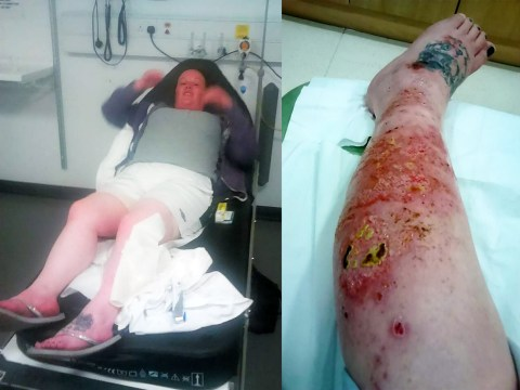 Mother left with oozing leg after false widow spider attacks her in bed