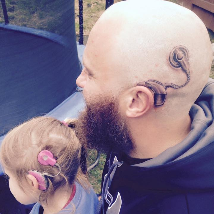 This is Alistair Campbell, father of six-year-old Charlotte. Charlotte has two cochlear implants to help her hearing - and in a heartwarming move of Father-of-the-Year proportions, Alistair now has one too. Credit: Anita-Alistair Campbell/Facebook