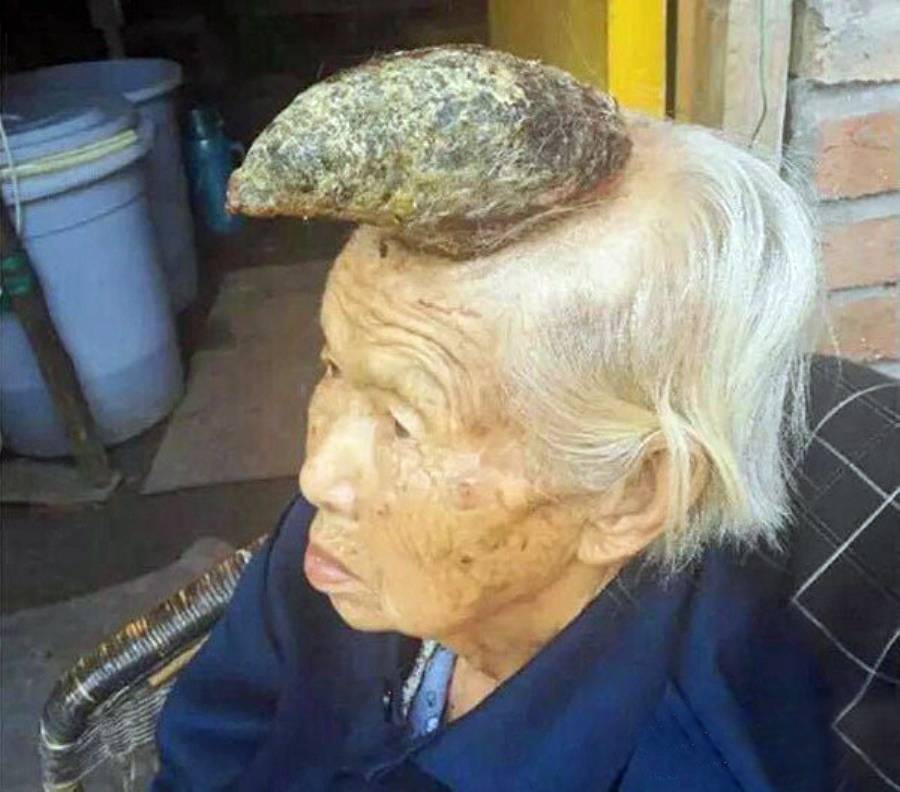"""Pic shows: Strange growth on the Liang Xiuzhen's, 87 head nnAn elderly villager has become known as the 'unicorn woman' after an abnormal growth on her head appeared to take the shape of a single large horn.nnLiang Xiuzhen, the 87-year-old pensioner, is a resident of Guiyan village in Ziyang city, in south-west China¿s Sichuan Province, where she began growing the 13-centimetre-long horn in the past six months.nnAccording to Wang Chaojun, Xiuzhen¿s son, his mother had something resembling a """"black mole"""" growing on her head seven or eight years ago.nnChaojun said: """"My mother complained about this mole-like growth on her head that itched all the time. We found ways to cure her itch using traditional Chinese medicine, and then left it be.""""nnTwo years ago however the mole gave way to a small horn-like mass the size of a little finger.nnXiuzhen accidentally """"broke"""" the small horn this February, and in its place her current horn began growing rapidly over the past six months.nnChaojun said: """"Now the horn hurts my mother and prevents her from sleeping. It also bleeds from time to time.""""nnDoctors in Sichuan diagnosed the so-called unicorn horn as """"cornu cutaneum"""", a keratinous skin tumour that has the appearance of a horn.nnOften small and benign, the growth can in some cases be much larger and malignant.nnChaojun said doctors believe they can remove the growth through surgery, but the family has its reservations due to Xiuzhen¿s old age and considering other options.nnChaojun said: """"My mother is old, and the horn is on her head which is a very sensitive area. I¿m not confident of surgery. If something goes wrong [during surgery], it would be terrible.""""nnOnly last month another pensioner made headlines after it was revealed she had three bizarre toenail like growths sprouting from her foot and had appealed for doctors to operate.nnThe unnamed elderly woman from the town of Wadi Al Dawasir in central Saudi Arabia¿s Riyadh Province has reportedly been to several hospitals and"""