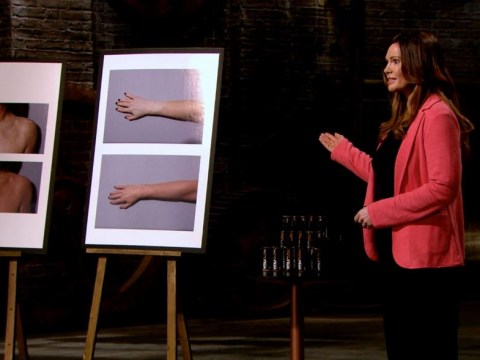 Polly Gotschi's life-changing product for people with vitiligo warmed everyone's heart on Dragons' Den