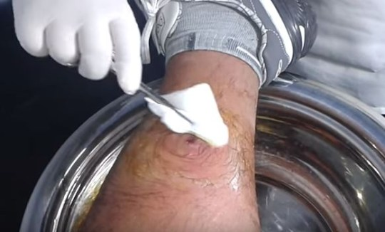 Pus x leg video from Spain showing man bursting three month-old cyst