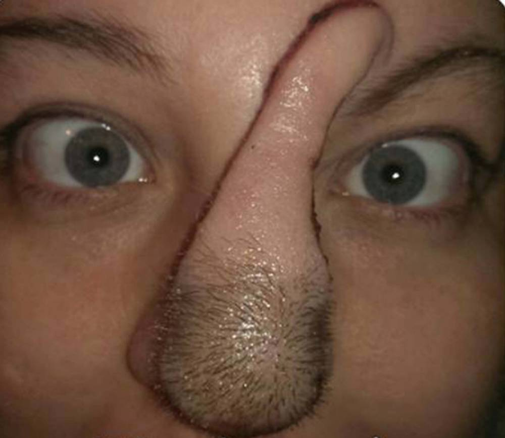 PIC FROM MERCURY PRESS (PICTURED: Bree Towner's new nose that is made from her scalp) A woman who discovered she had cancer after finding a zit on her nose was given a new nose by doctors to beat the disease. Bree Towner, 28, from Edwardsville, Illinois, discovered the small spot on her nose in January 2013 but was told by medics that it was not cancerous. But after allergists told her that she had basal cell carcinoma two years later, Bree underwent a whirlwind set of surgeries to fashion her a new nose from her scalp. SEE MERCURY COPY