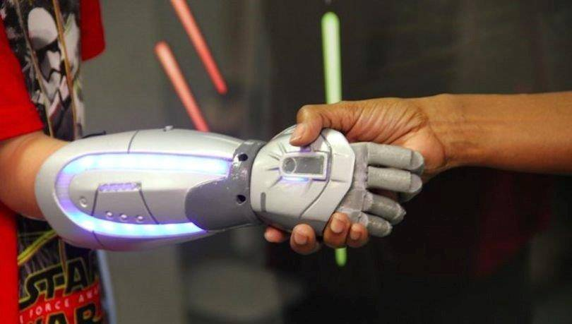 A UK-based startup have created Disney bionic hands for child amputees