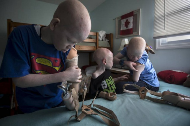 Albino children have their limbs hacked off to be kept as good luck charms
