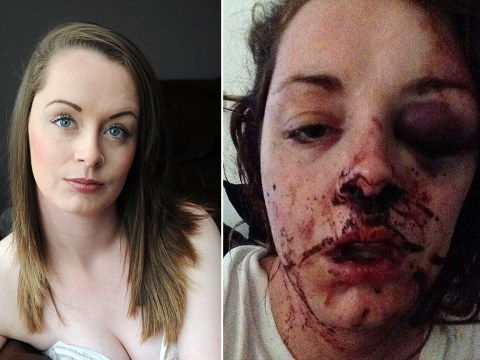 Ex-boyfriend left this woman unconscious for two days when she tried to leave him