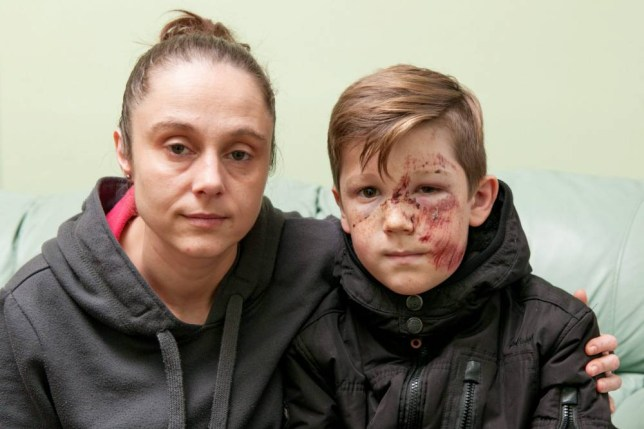 """Ashley Barrs, 10, who was injured in a hit and run incident on Wednesday evening at around 6pm - Pictured with mum Jane Keates.  Police are hunting a hit-and-run Audi driver who ploughed into a schoolboy at high speed leaving him with shocking facial injuries.  See NTI story NTIHIT.  Ten-year-old Ashley Barrs was playing football with his 12-year-old brother Jaden and two friends when he was hit at 6pm on Wednesday (4/11).  A white Audi A3 ploughed into him on Neachells Lane in Wednesfield, West Mids., sending him hurtling 10ft into the air.  Ashley was hit with such force the wing mirror was torn off the car but despite Ashley lying bleeding in the road the driver sped off.  The schoolboy, who was knocked unconscious, was rushed to hospital where he underwent a CT scan and an X-ray for injuries to his ankle, shoulder and stomach.  But doctors at New Cross Hospital in Wolverhampton, West Mids., told him it was a """"miracle"""" he had no breaks or serious injuries.  His mum Jane Keates, 35, yesterday posted shocking pictures of Ashley's injured face, which is covered in cuts and bruises, on her Facebook page.  The family are appealing for information about the driver of the Audi who sped off leaving the youngster lying in the road."""