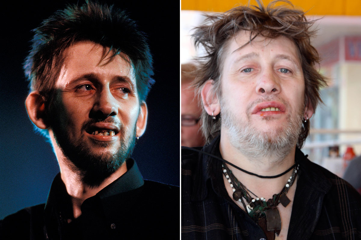 Someone is making a Christmas documentary about Pogues frontman Shane MacGowan's teeth