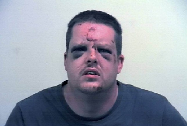 This is the battered face of sex attacker Johnathon Paul holmes who was clobbered by his terrified victim with her KEYS as he tried to rape her - leaving him looking like Frankensteinís monster. See Ross Parry copy RPYKEYS : Johnathon (corr) Holmes, 35, dragged the woman into a hedge but she hit him in the face with her keys and bit down on his tongue as he forced it inside her mouth. His police mugshot bears an uncanny resemblance to Frankensteinís monster and he has now been jailed for four-and-a-half years for the horrific attack. His victim told Sheffield Crown Court: ìI believed without a doubt this man was going to rape me.