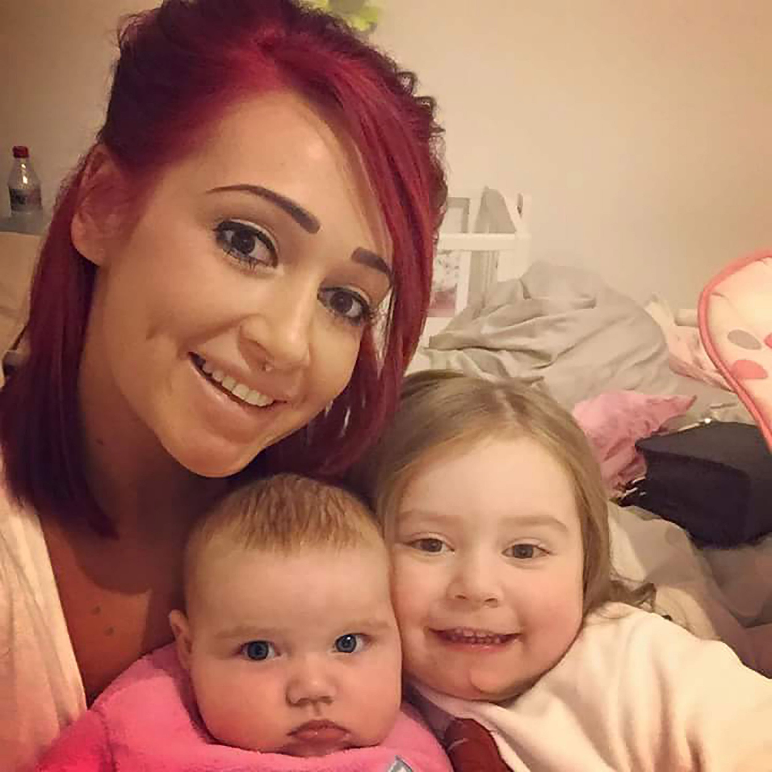 PIC FROM MERCURY PRESS (PICTURED: KIRBY SHEEN WITH HER TWO DAUGHTERS AYMARIS, 2, AND AYVIARNA, 5 MONTHS) A young mum has been told she could be left scarred for life after an e-cig battery exploded in her face as she checked to see if it was working. Kirby Sheen, 24, was left needing plastic surgery after her eye lid was split in two by the mouth piece of the device, which propelled towards her after the battery exploded. The mother-of-two says she was horrified as she looked in the mirror and realised her eye was dripping with blood and battery acid on her forehead. Kirby, who lives with her partner Adam Burgess, a construction worker, and their two children Aymaris, two, and Ayviarna, five months, was rushed to A&E but was immediately referred to an eye specialist at Manchester Royal Infirmary. The following day Kirby had to undergo two hours of plastic surgery and has now been told she could be left permanently scarred. Kirby is now recovering from the ordeal, which happened on Wednesday, but says she will need another operation to clean the wound and remove the stitches. SEE MERCURY COPY