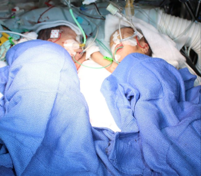 epa05136973 A handout picture provided by the Inselspital Bern hospital on 31 January 2016 shows formerly conjoined twins Lydia (L) and Maya (R) after an operation to seperate them in Bern, Switzerland, 10 December 2015. Swiss doctors on 31 January said that they had successfully separated conjoined twins only eight days after birth, adding that they were possibly the tiniest patients that have ever undergone such a surgery. The girls weighed a total of 2.2 kilogrammes at the time of the five-hour operation at Bern University Hospital on December 10. They were part of triplets who were born in December, two months ahead of their due date. While one sister was born healthy, the other two were joined at their chests, livers and hearts. The parents and the doctors decided to separate the girls so soon after birth because the joined liver created serious blood pressure problems in both babies. EPA/INSELSPITAL BERN/HANDOUT MANDATORY CREDIT HANDOUT EDITORIAL USE ONLY/NO SALES