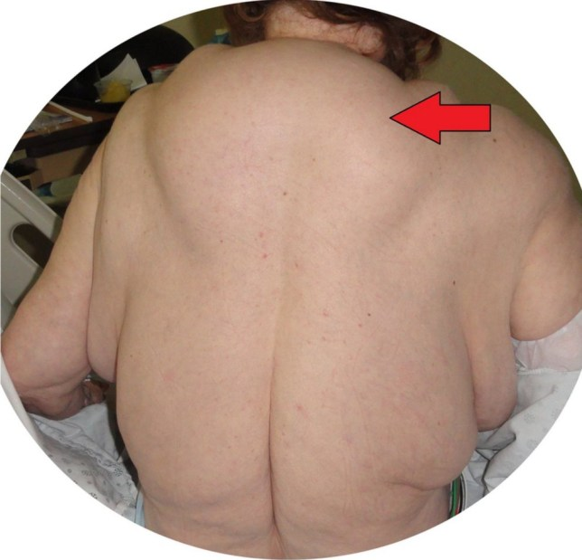 Woman who drank heavily for 40 years develops a BOOZE HUMP on her back and huge lumps on her neck and arms Credit: BMJ Case reports