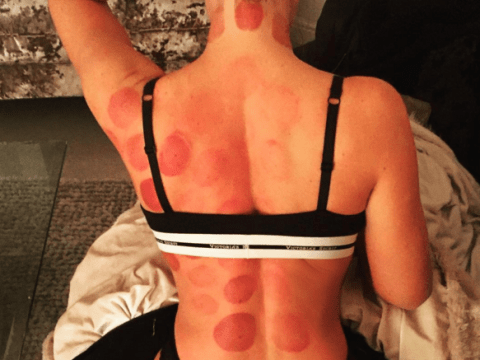 What on earth has Aisleyne Horgan-Wallace done to her back?