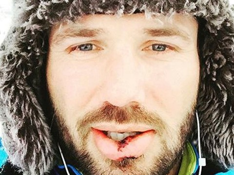 The Jump 2016: Ben Cohen joins the casualty list after 'smashing face' during training