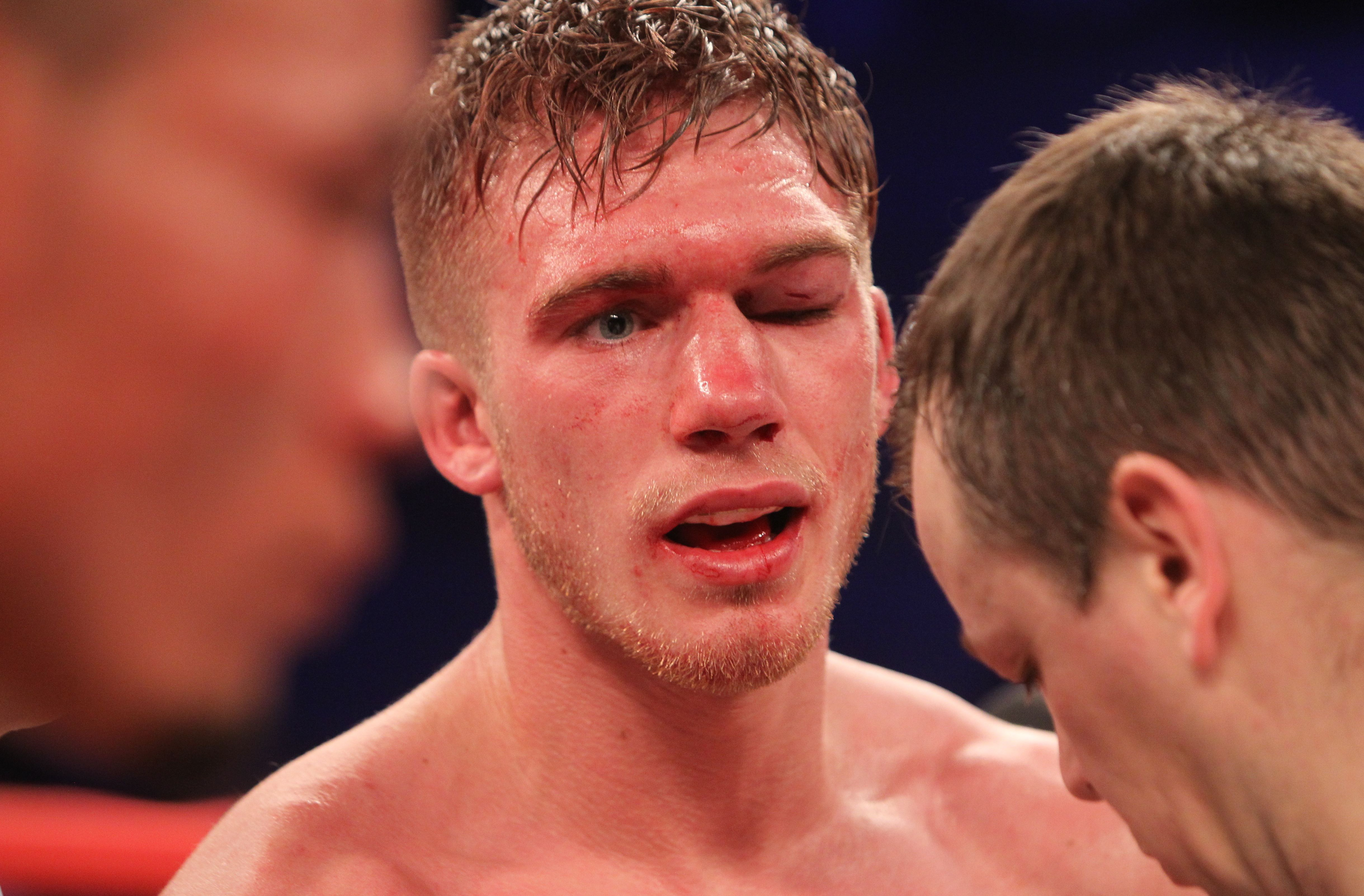 Editorial Use Only Mandatory Credit: Photo by TGSPhoto/REX/Shutterstock (5619257bp) Nick Blackwell vs Chris Eubank Jr at Wembley Arena on 26th March 2016 Hennessy Boxing show, Wembley Arena, London, Britain - 26 Mar 2016