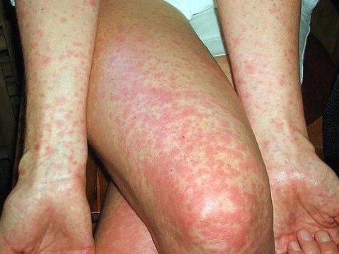 Scarlet Fever cases have reached an almost 50 year high
