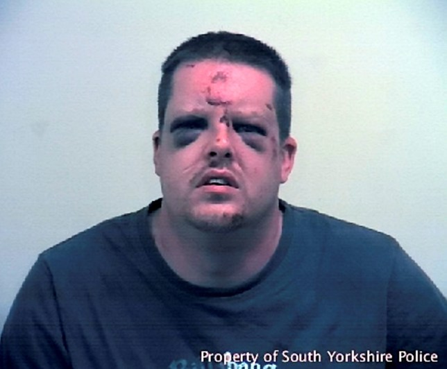 This is the battered face of sex attacker Johnathon Paul holmes who was clobbered by his terrified victim with her KEYS as he tried to rape her - leaving him looking like Frankensteinís monster. See Ross Parry copy RPYMONSTER : A brave woman who fought off a sex attacker has been honoured by South Yorkshire Police for helping to make Sheffield ëa safer place for every woman in ití. The woman, who was 21 at the time, bit down on her attackerís tongue during the ëterrifyingí assault and used her house keys to cut his face. She shouted ëyou wonít do that to a woman againí as her attacker tried to flee. Johnathan Holmes trailed his victim for a mile before pushing her into bushes and leaving her convinced she was going to be raped. His victim, who said she was ëso terrified but so angryí, managed to get her keys to her attackerís neck and throat as she found the strength to fight back.