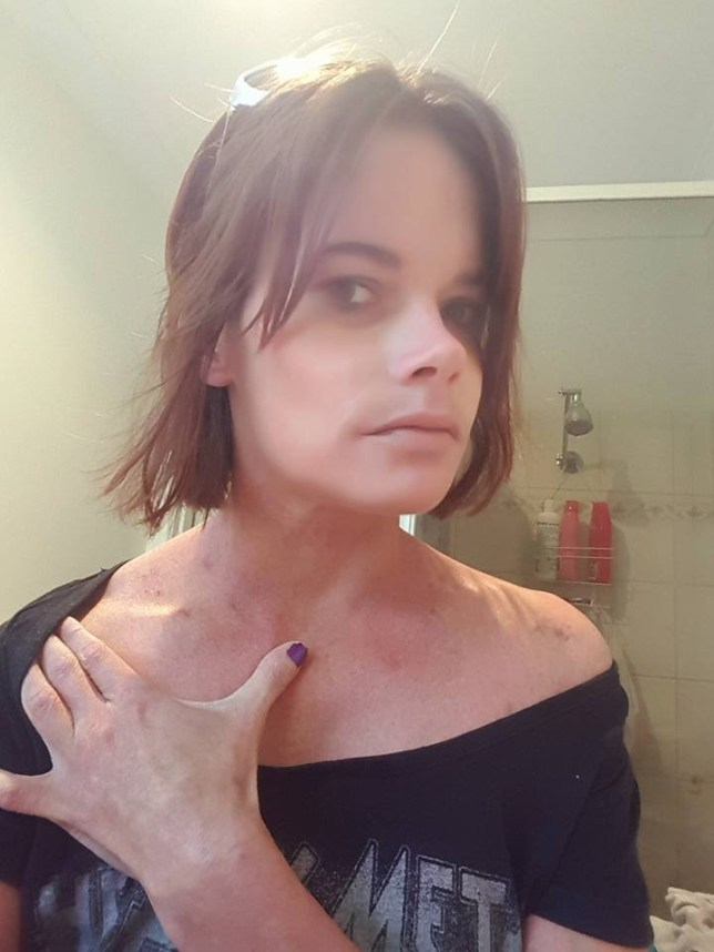 Bendigo woman who says she was attacked by a man she met online Can I get the below pics in. She has also posted them to 7000 people on a closed Facebook page called Name and Shame in Oz
