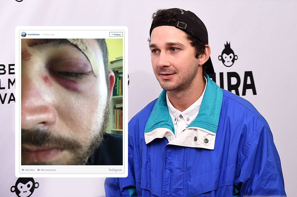The man who was punched 'for looking like Shia LaBeouf' just got a surprise from the man himself