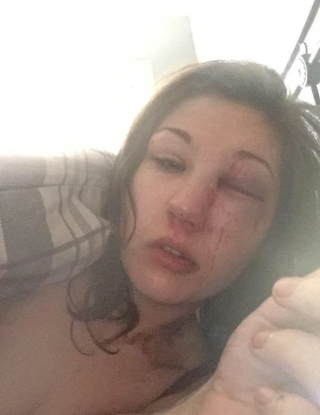 ** EMBARGOED UNTIL 3PM SUNDAY MAY 1. NO ONLINE USE UNTIL THEN PLEASE ** Collect pic of Chelsea's injuries at the hands of her then boyfriend Kevin. See SWNS story SWMUM; A young woman who confided in her mother after her relationship turned violent was horrified to discover she had secretly bedded her boyfriend behind her back. Vulnerable Chelsea Hooper, 22, turned to her mum Jacqueline for support after her boyfriend Kevin Scott, 35, became abusive. But instead of putting a distance between her family and bully Kevin, married Jacqueline, 47, embarked on a sordid affair with him. Chelsea finally discovered the truth when she stumbled across Facebook messages from her mum describing how good Kevin was in bed.