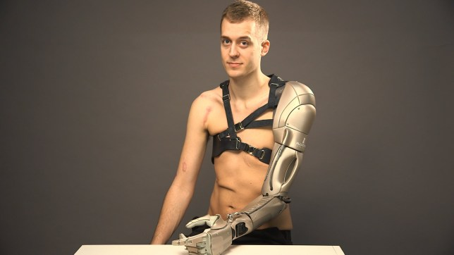 James has the most impressive prosthetic arm (Picture: BBC/Omkaar Kotedia)