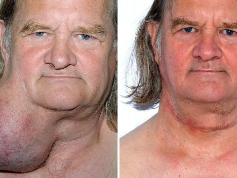 Man lived with massive tumour on his neck for more than 20 years