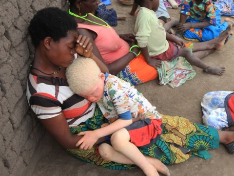 Tragedy of albino people hunted and murdered for body parts