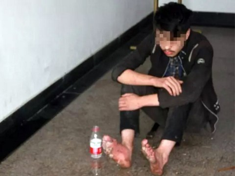 Teen was so addicted to online gaming his feet started to rot