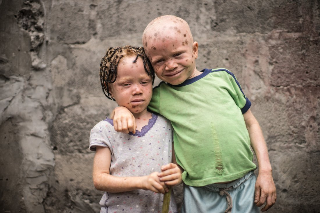 Humanizing Photographs of People with Albinism in the Congo Credit: Patricia Willocq