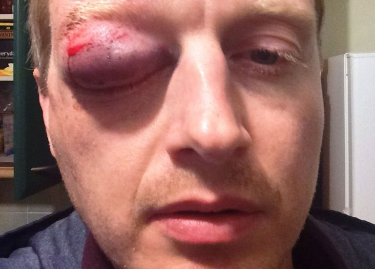 Cyclist could lose eyesight after 'coward' pelts him with an egg